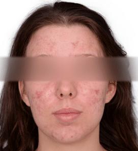 kvinde med akne